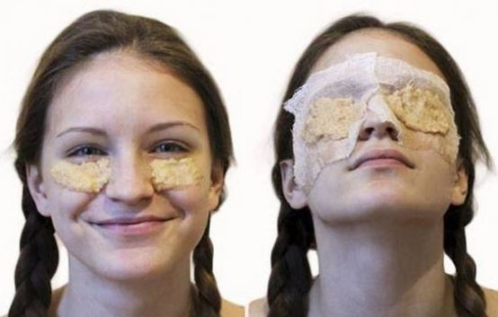 Potatoes can be used to get rid of eye bags and puffiness!
