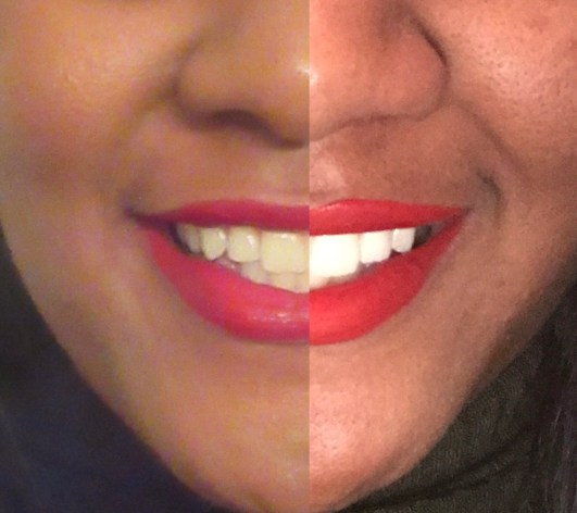 before and after teeth whitening pictures, Teeth Whitening Giveaway, custom fitted teeth whitening trays, Sensitive teeth, tooth desensitizing gel ingredients, Teeth sensitivity, teeth whitener, teeth whitening kit, coffee stained teeth, does coffee stain your teeth, how to remove stains from teeth, professional teeth whitening, custom teeth whitening trays, dentist teeth whitening, whitening teeth at home, home teeth whitening, teeth whitening tray, teeth whitening gel, tobacco stains,