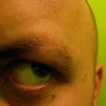 [早安! 地球] 鬼剃頭落髮有救! 美學者用脊髓藥物喚回新髮