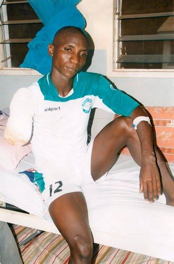 Ayub Isiko with an amputed right arm.