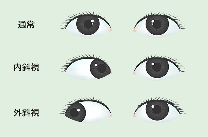 スマホの見すぎ?急性内斜視予防に眼筋トレーニング   速読情報館 速読に関するあらゆる情報をお届けします