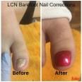 lcn-barefoot-nail-corrections