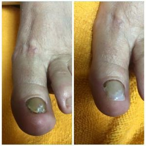 Before and After Toe Nail