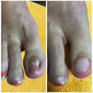 Prosthetic nails