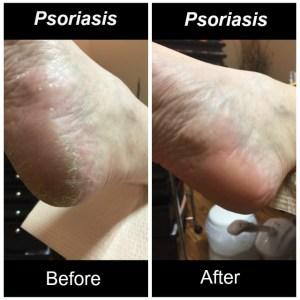 2017-02-22-psoriasis-3