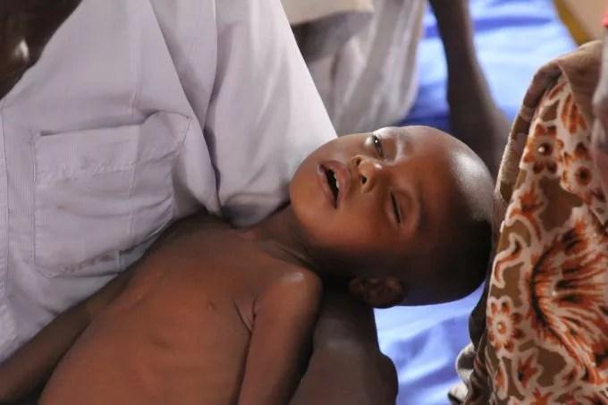 nigeria-maiduguri-malnutrition