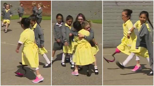 VIDEO   Así recibieron unas niñas a su compañera con nueva prótesis