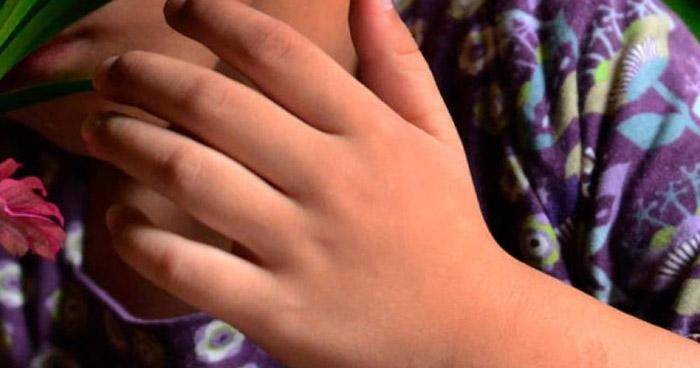 Mujer usaba cuchillo caliente para castigar a su hijo de 6 años en La Unión