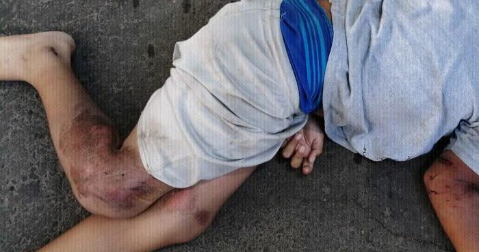 Niño de 11 años en estado crítico tras ser atropellado en carretera de La Libertad