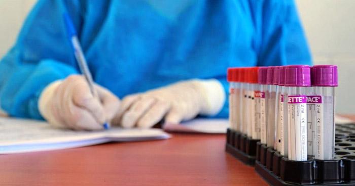 Más de 120 pruebas de COVID-19 se han realizado en El Salvador