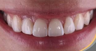 Los implantes dentales, una nueva oportunidad de sonreír