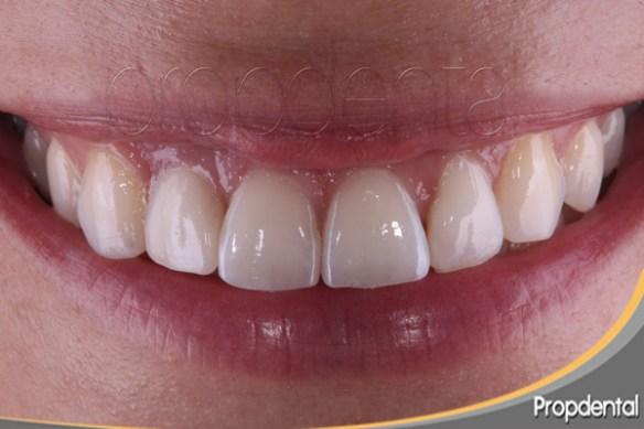 protesis-de-circonio-sobre-implante-dental