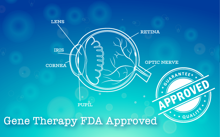 FDA Approved Gene Therapy for Rare Eye Disease