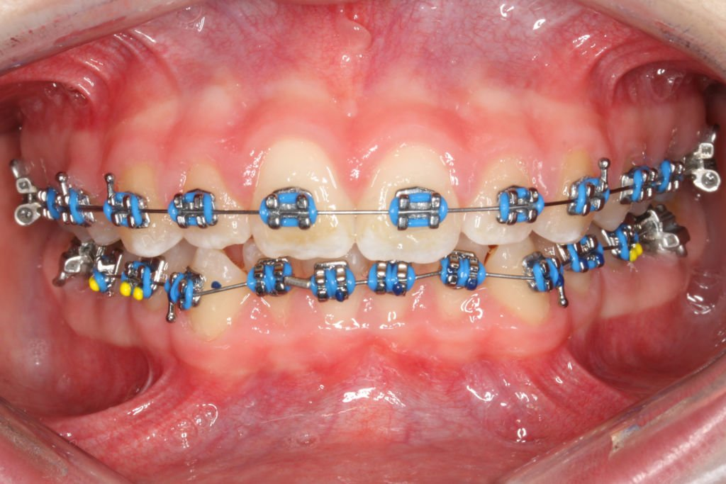Colorful Braces Are Becoming a Fashion Statement