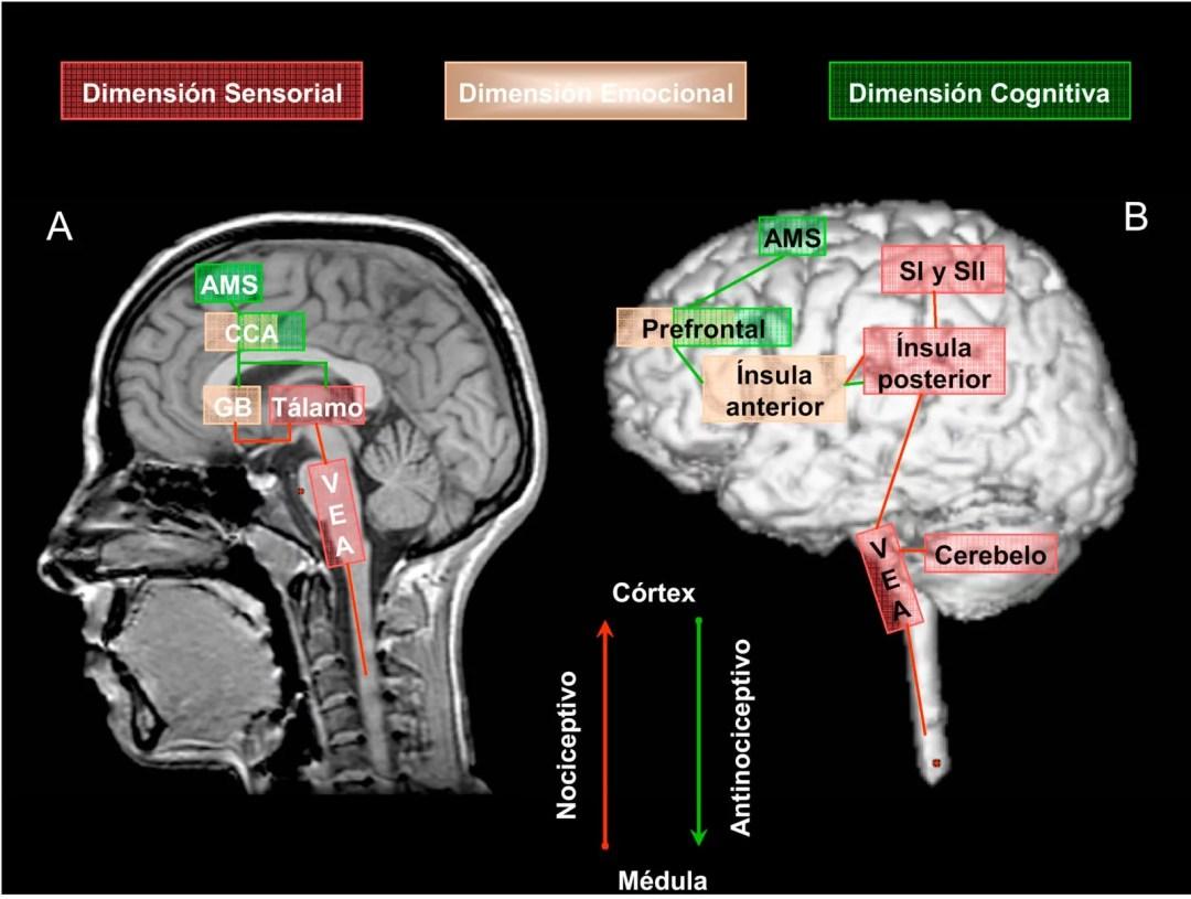 """Representación de la """"matriz neural"""" del dolor y de las dimensiones clásicas del procesamiento del dolor en relación con las áreas neuroanatómicas implicadas, en corte sagital medial (A) y en corte sagital lateral (B). Representación del sistema neural nociceptivo (flecha en color rojo) y del sistema neural antinociceptivo (flecha en color verde). AMS: área motora suplementaria. CCA: corteza cingulada anterior. GB: ganglios basales. SI: corteza somatosensorial primaria. SII: corteza somatosensorial secundaria. VEA: vía espinal ascendente."""