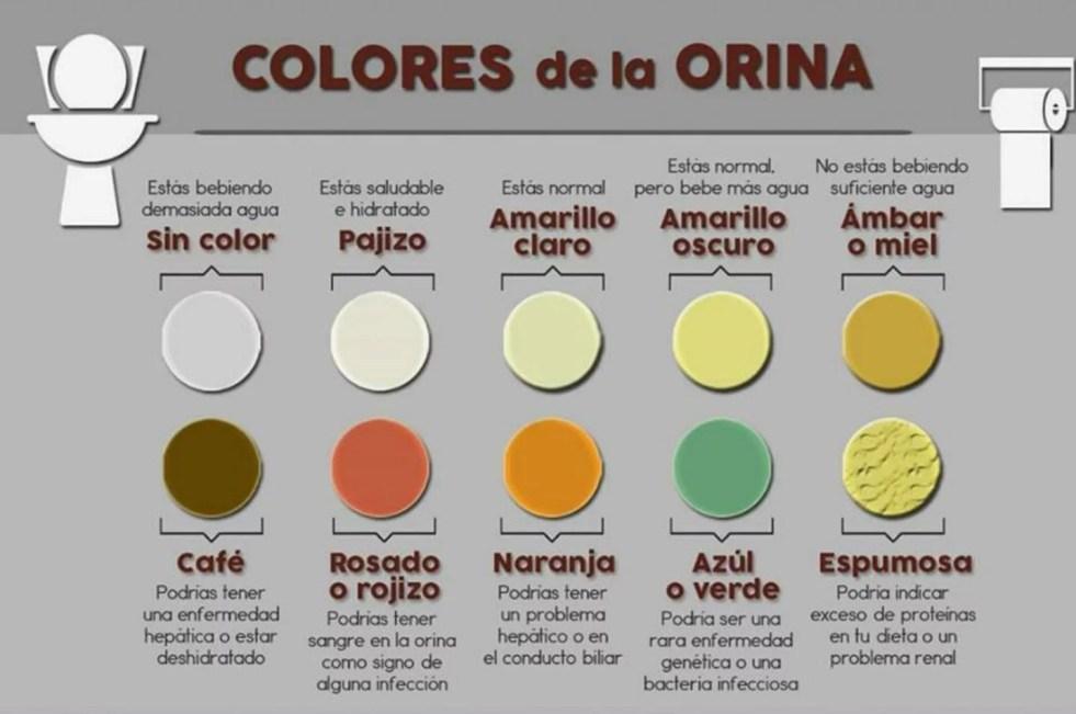 orina_colores