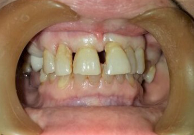 dental implants before