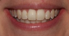 Cosmetic Dentistry After