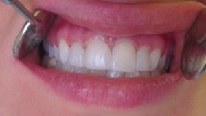Cosmetic Dentistry Veneers After