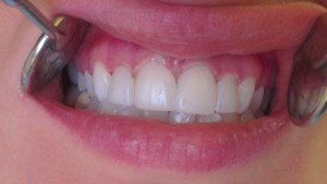 Cosmetic Dentistry Veneers After