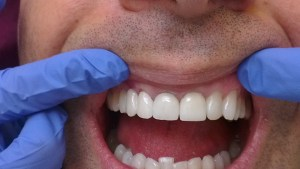 Cosmetic Dentistry Crowns After