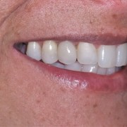 side view of dental implants