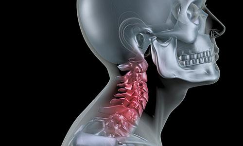 カイロプラクティックで首の矯正をしてきました。