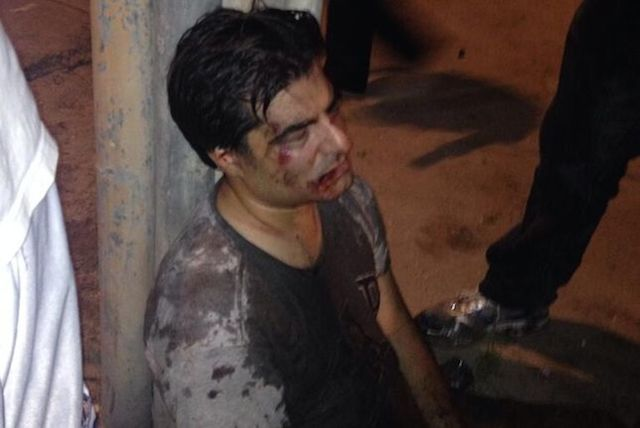 golpeado_esposo_brasil
