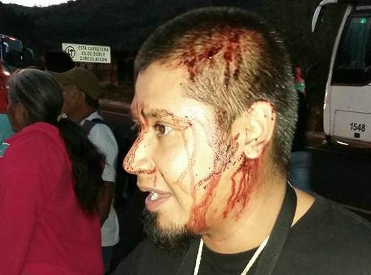 ayotzinapa 2