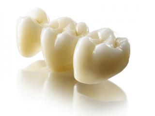 prótese dentária fixa