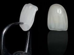 espessura lente de contato dental