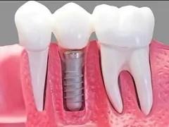 tratamento implantes