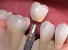 implante dentário com carga imediata