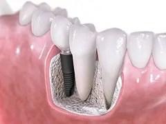 implante dentário porto alegre