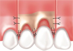 retalho periodontite