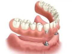 prótese dentária sobredentadura overdenture