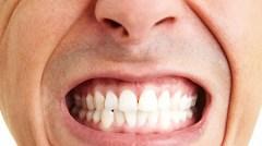 bruxismo - ranger os dentes