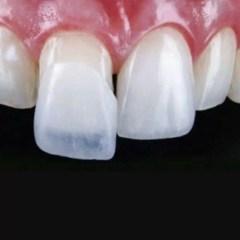 cuidados com a lente de contato dental