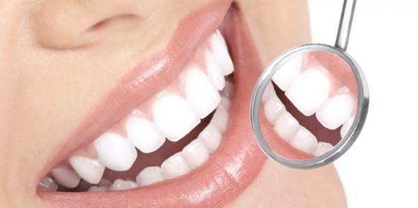 Clareamento Dental Branqueamento Do Dente ツ Dentista Sorridere