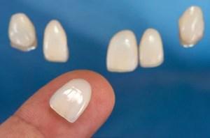 lente no dente
