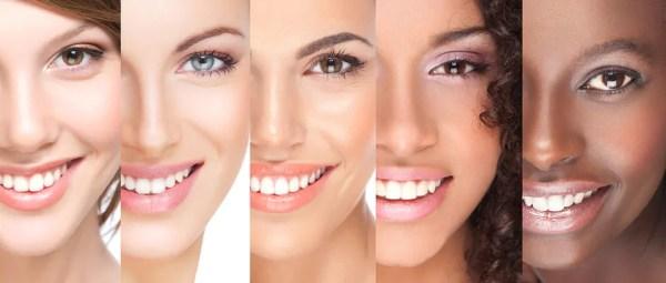 lente de contato ou clareamento dental