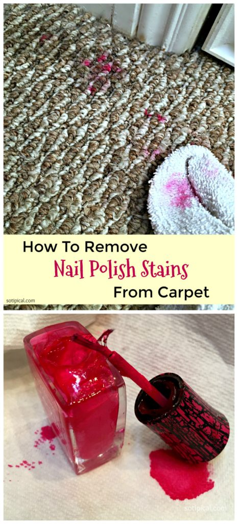 Make Sure To Take Off The Nail Polish And Not Leave It On For Too Long How Remove Yellow Stains Fingernails Get