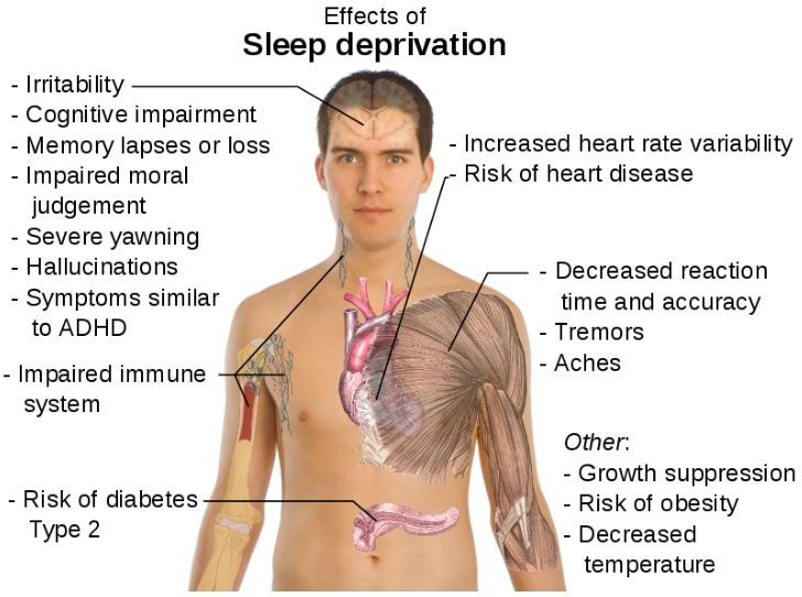left side brain functions diagram gmc jimmy stereo wiring lack of sleep makes us hungrier -- health & wellness sott.net
