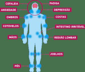 DIAGNÓSTICO da fibromialgia