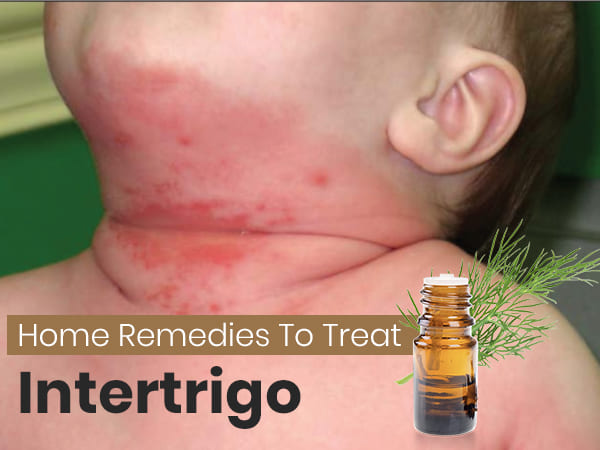 How To Treat Intertrigo Safe And Effective Home Remedies Sound Health And Lasting Wealth