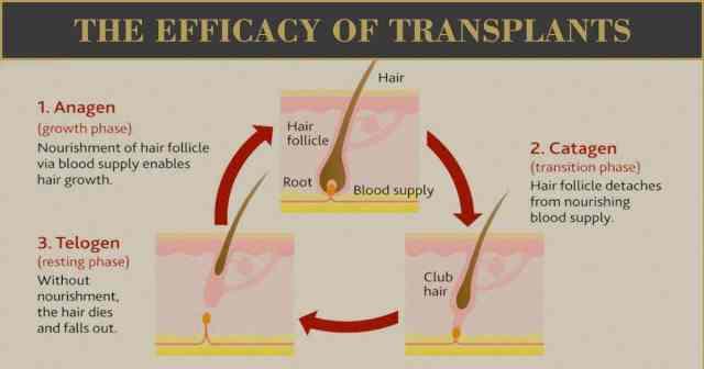 The Efficacy of Transplants