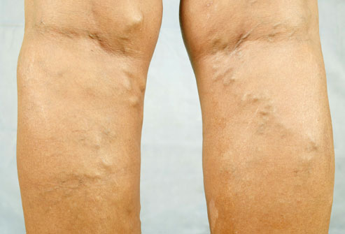 Are Varicose Veins Genetic?