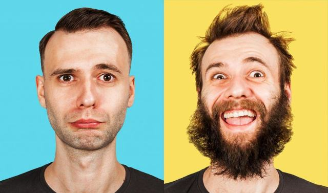 Reasons for beard hair