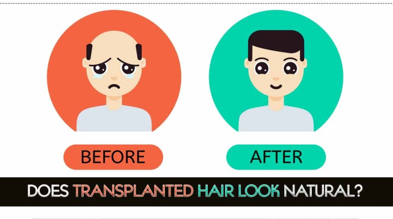 Does Transplanted Hair Look Natural
