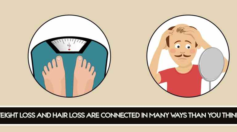 WEIGHT LOSS AND HAIR LOSS ARE CONNECTED IN MANY WAYS THAN YOU THINK